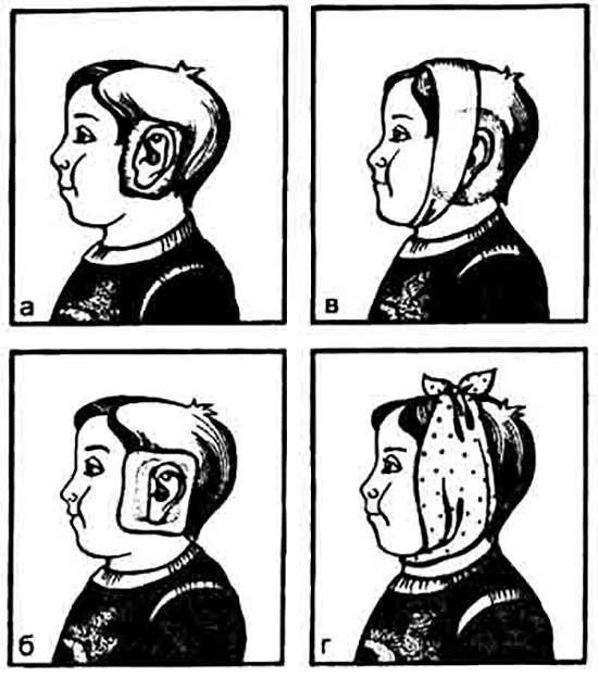 Как сделать компресс если болит ухо